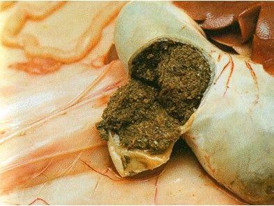 Fermentation des aliments dans l'intestin